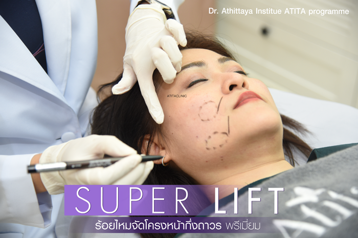 Atita Clinic - Super LIFT