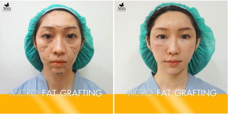 Micro FAT Grafting before-after