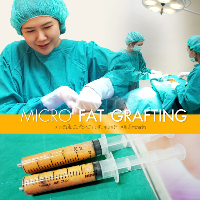 Micro Fat Grafting