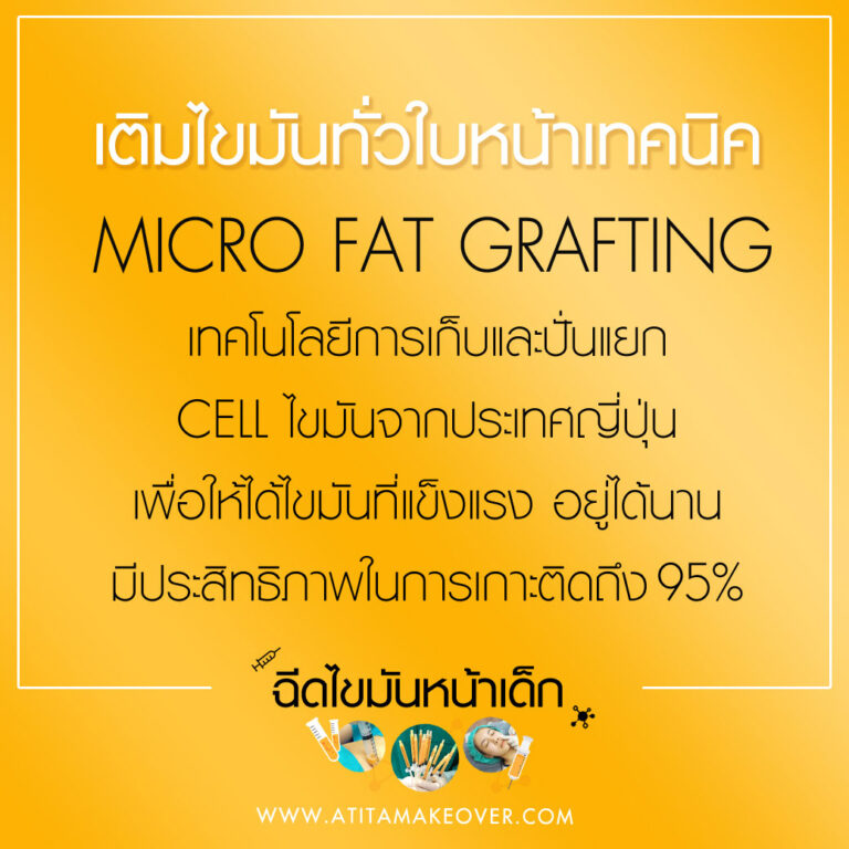 What is Micro Fat Grafting