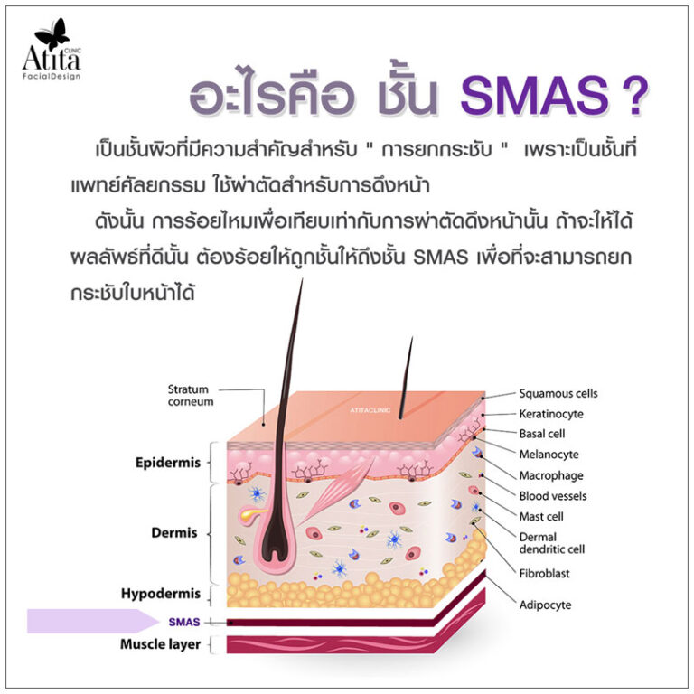 SMAS คืออะไร